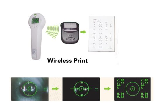 SW-100 Ophthalmic Equipment China Portable Keratometer
