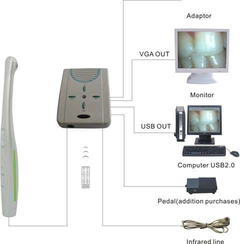 News Wired Intraoral Camera for PC and Monitor 1.3MP (MD910)