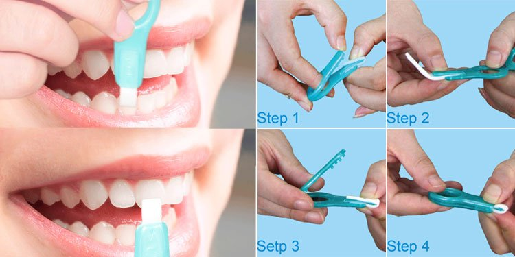 use-teeth-cleaning-kit-erase-the-teeth-stains-by-the-front-side-and-please-be-a-litlle-gentle.jpg